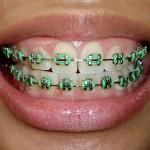 Pemakaian pendakap gigi atau braces
